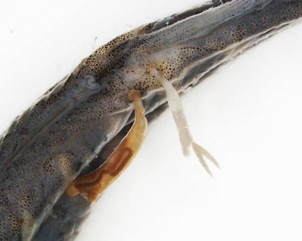 виды паразитов в теле человека